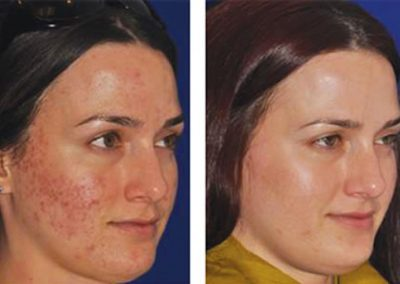 Before & After MicroPen® treatment by Jody Comstock, MD